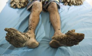 man-suffering-from-rare-condition-nigerian-infopedia-2